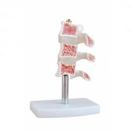 656 Fragment osteoporozy MA – 134