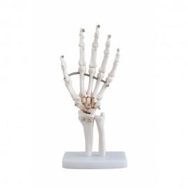 869 Fragment osteoporozy